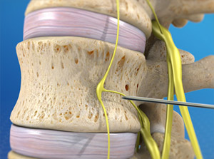 Lumbar Sympathetic Block