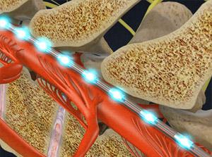 Spinal Cord Simulation