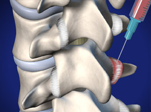 PRP Injection injecting into thoracic spine